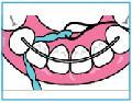 PIKSTERS X-Threader pętelki do nici dentystycznych  30 sztuk